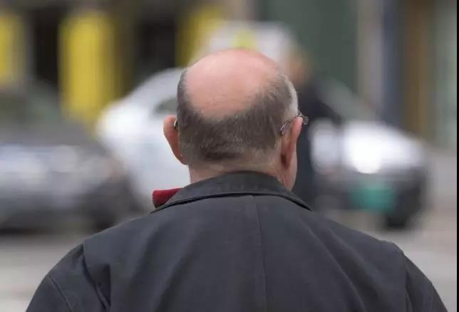 一個男人禿頂后的人生規劃