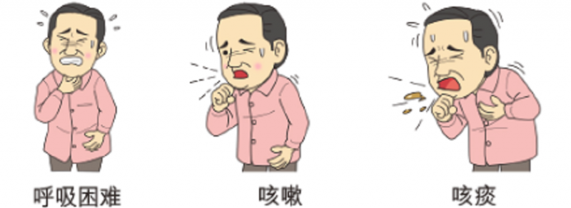 喘息 症状 咳